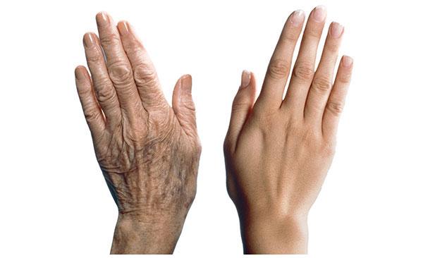 stare ruke pored mladih ruku.