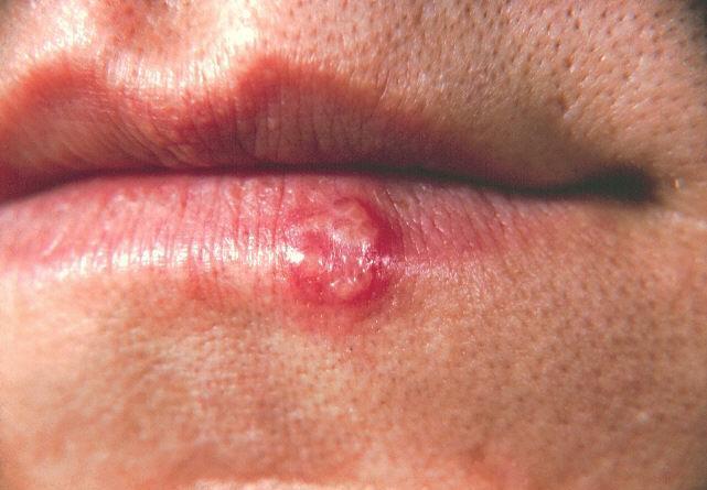 herpes prirodno lecenje