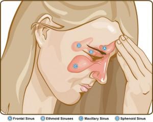 prirodni lekovi upala sinusa