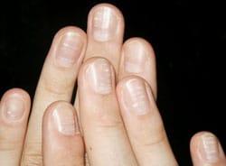 nokti nedostatak vitamina