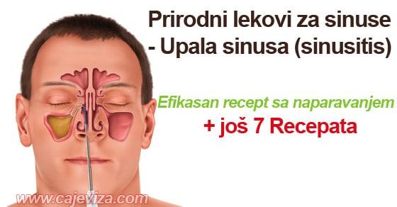 upala sinusa sinusitis