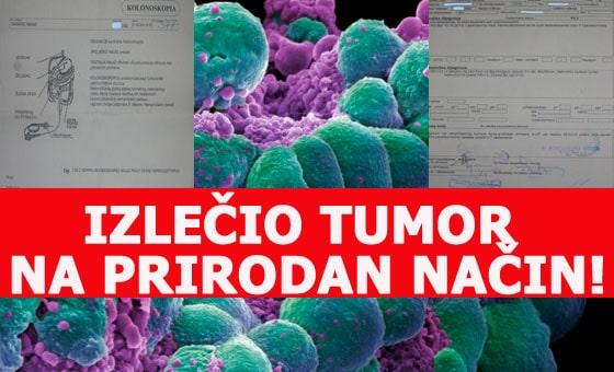 tumor prirodno lečenje