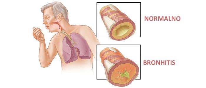bronhitis ilustracija.