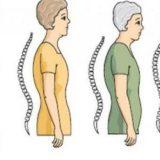 Ankilozirajući spondilitis lecenje cajevima