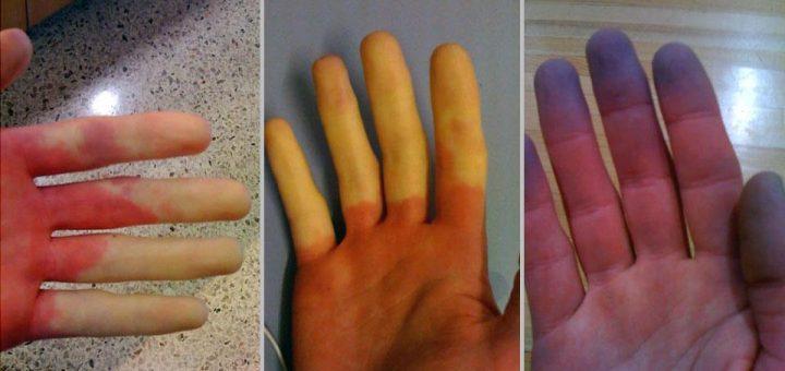 Rejnoova bolest cajevi i lecenje