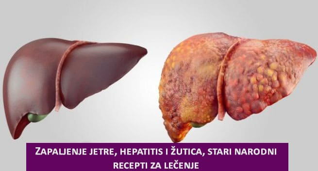 hepatitis prirodno ilustracija.