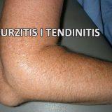 Burzitis i tendinitis prirodno lecenje