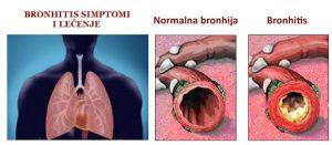 prikaz bronhitisa.